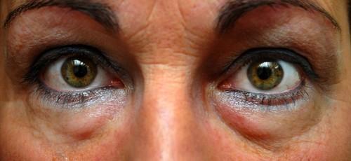 Como-Tratar-e-Prevenir-as-Olheiras